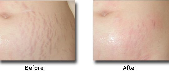 ba-stretch-mark-removal