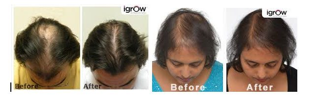 hair_loss_treatment1
