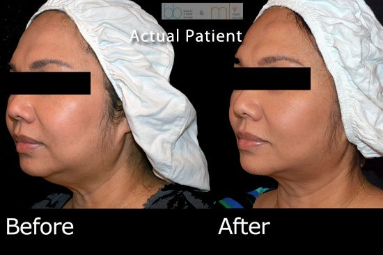 Ultherapy for Jowl - San Diego