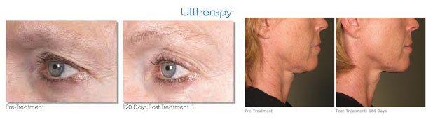 ultherapy3_beautyandbodymedlounge