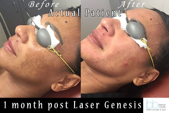 beautyandbody-medlounge-spa-laser-genesis