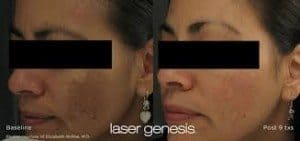 Beauty and Body Medlounge & Spa San Diego Laser Genesis Before and After