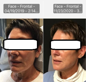 fillers beauty and body patient