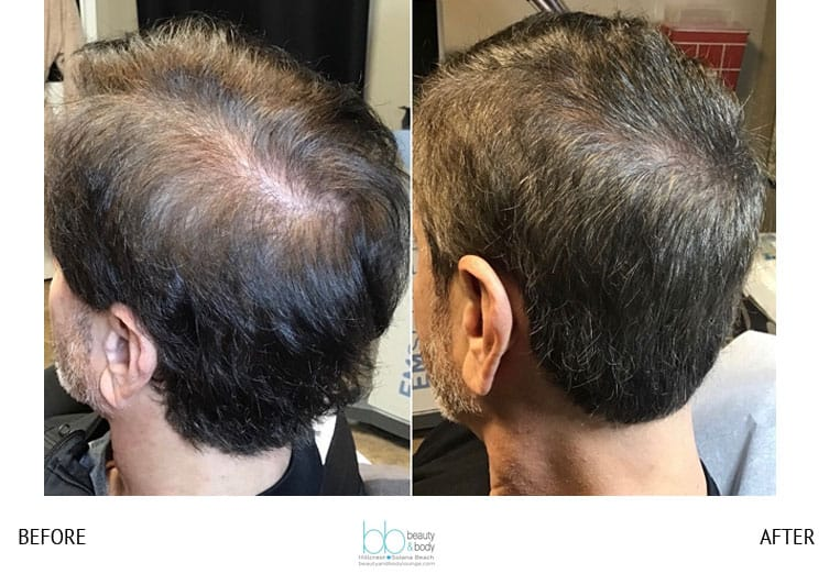 prp hair before and after