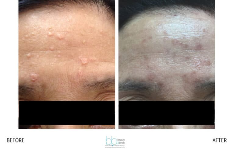 skin tag sebaceous hyperplasia san diego
